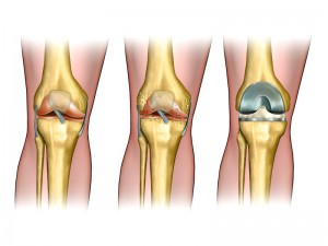 Knee Surgeon Los Angeles