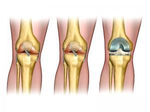 Knee Surgeon Beverly Hills