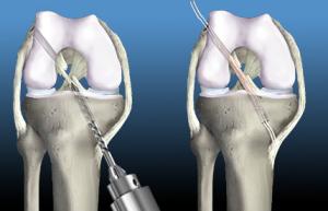 Beverly Hills Knee Surgeon