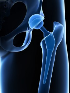 Hip Replacement Los Angeles