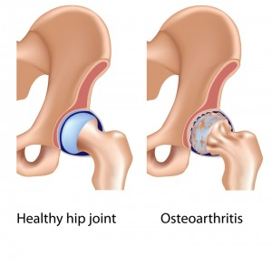 Hip Replacement Surgeon Los Angeles