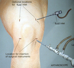 Knee Doctors in Los Angeles