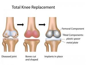 Knee Surgeon Los Angeles