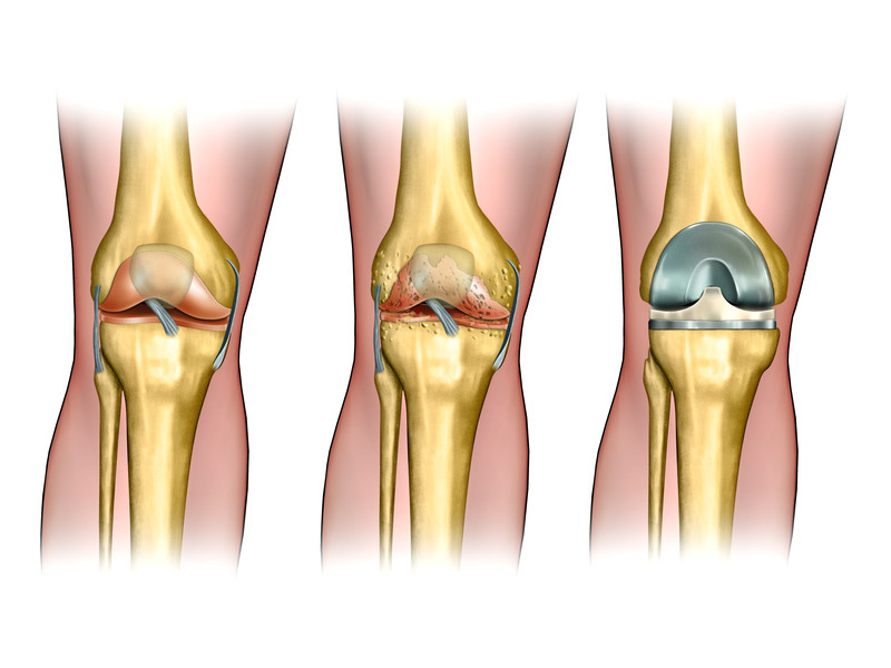 Knee replacement doctor Los Angeles