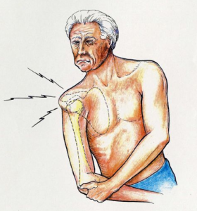 shoulder instability pain
