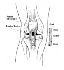 ACL Graft