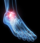 stress fracture3