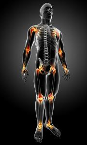 joint pain arthritis picture