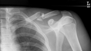 Clavicle-Fracture-Type-B