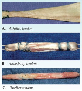 anterior-cruciate-ligament-acl-reconstruction-graft-selection-osuv6n2-3-2coljpg