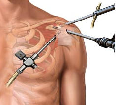 Shoulder Surgery Los Angeles & Beverly Hills