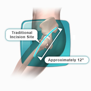 Hip Replacement Surgery Los Angeles